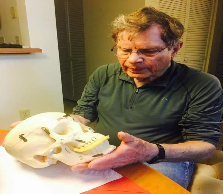 herbert-siess-donates-human-skull-3